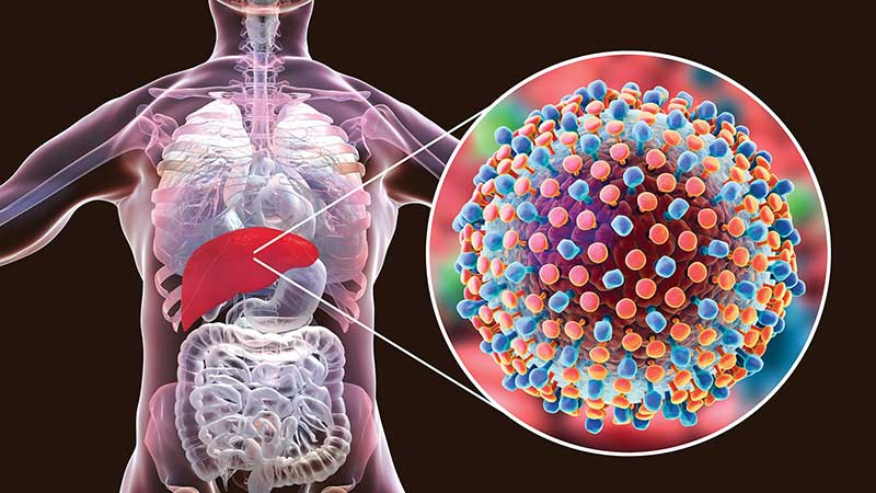 HepC elimination – in association with WHO